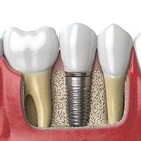 impianti_dentali