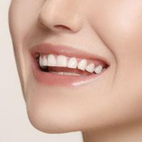 estetica_dentale