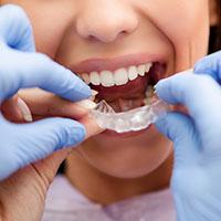 faccette_dentali
